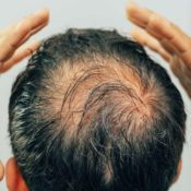 How To Fix Hair Loss Issues In Dallas Area?