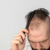 Everyday Hair Loss