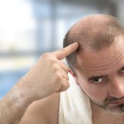 Does biotin affect hair loss?